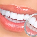 Guides on How to Take Care of Your Teeth