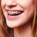 How to Be Confident While Having an Orthodontic Treatment